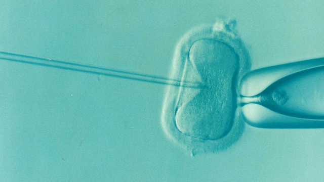 IVF in the laboratory
